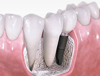 Зубы на имплантатах сохраняют здоровье височнонижнечелюстного сустава лучше, чем протезы